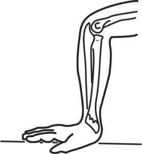 Złamanie nadgarstka